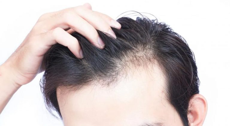 What are the causes of hair loss?